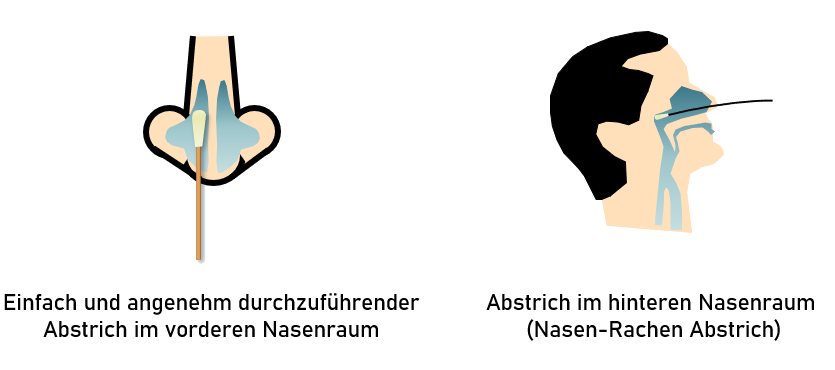 Anteriornasal vs Nasopharynx
